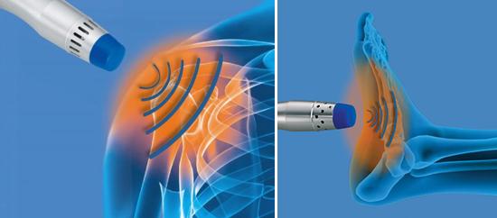 Shockwave Therapie bij Plantaris Fascitis (peesplaat ontsteking voet) en schouderklachten